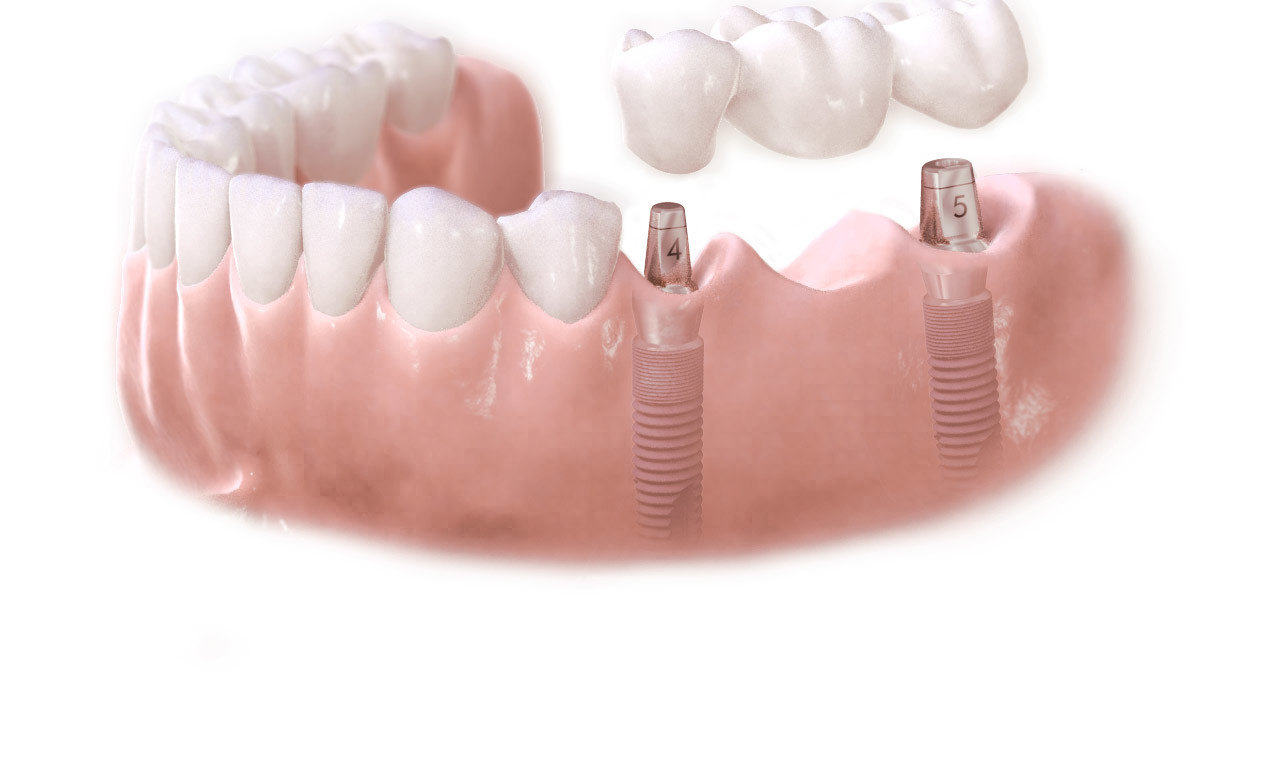 fixed artificial teeth