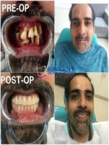 CHRONIC PERIODONTITIS