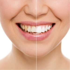 Teeth Whitening Chennai